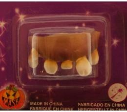 Šķībi gumijas zobi, dzeltenīgi